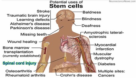 Possible Stem Cell Uses