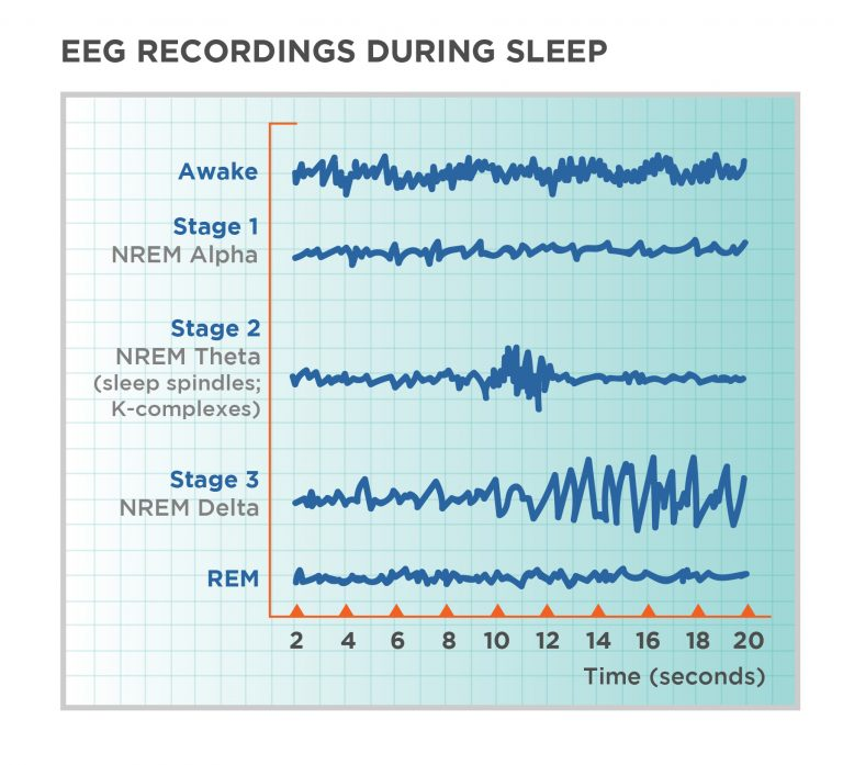 Sample EEG depicting brain waves during the different sleep cycles